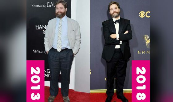 Zach Galifianakis Lost Weight and Now He Looks Like a Completely Different Person
