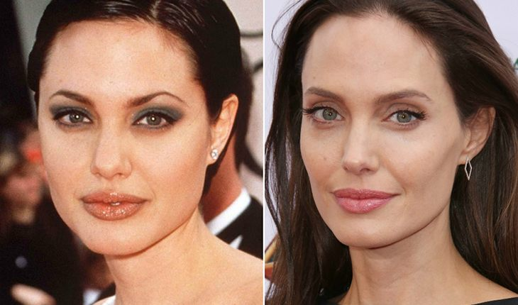 Angelina Jolie before and after plastic surgery
