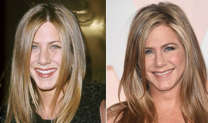 Jennifer Aniston before and after plasty