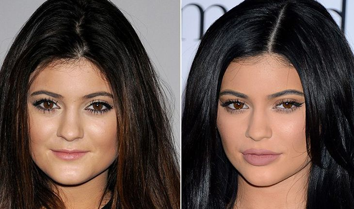 Kylie Jenner before and after a series of plastic surgery