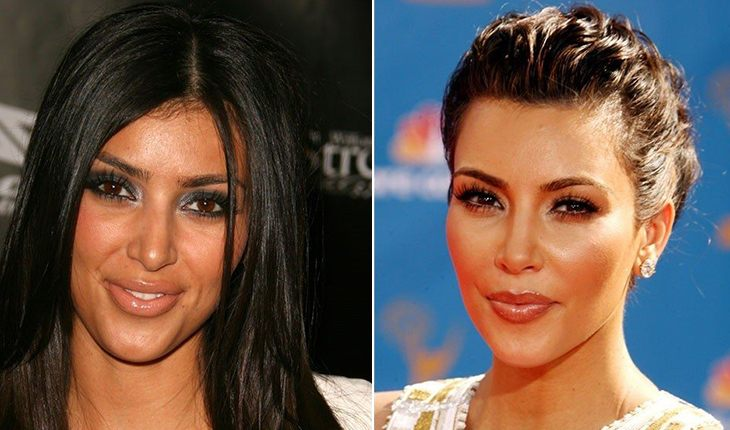 Kim Kardashian before and after plasty