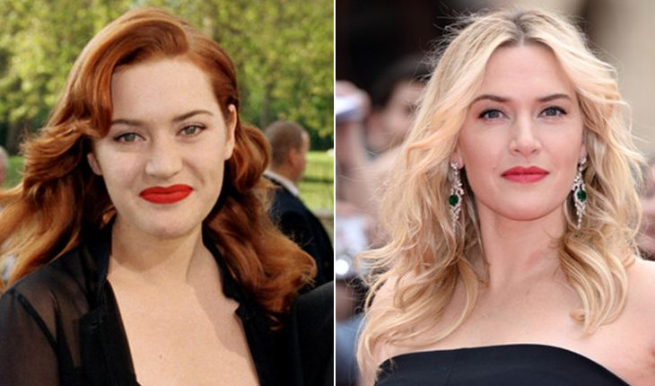 Kate Winslet before and after plasty
