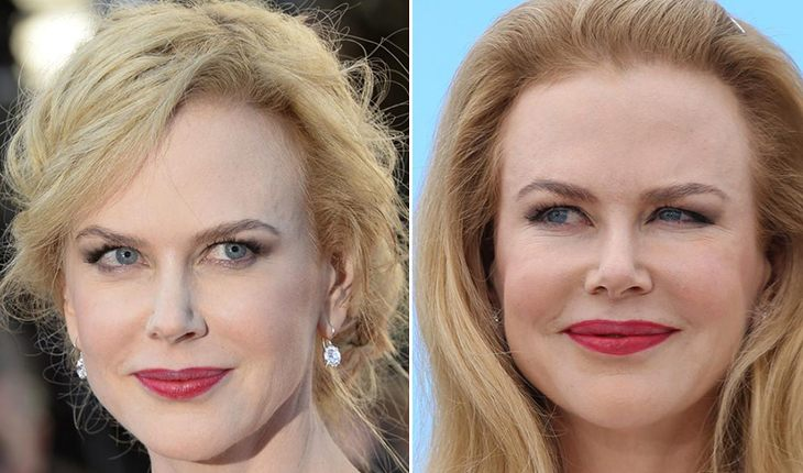 Nicole Kidman before and after plastic surgery
