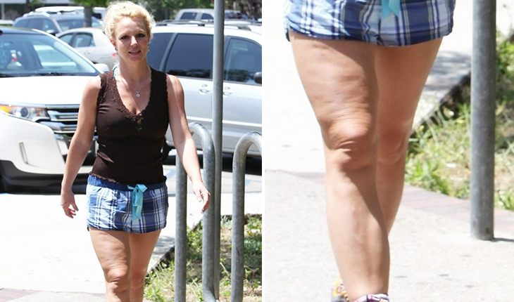 Britney Spears: cellulite on legs