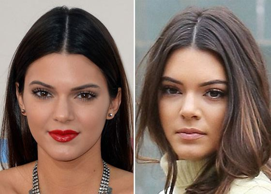 It's Surmised that Kendall Jenner had Rhinoplasty