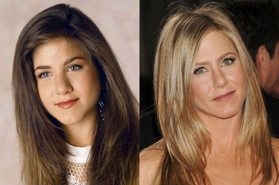 Jennifer Aniston before and after rhinoplasty