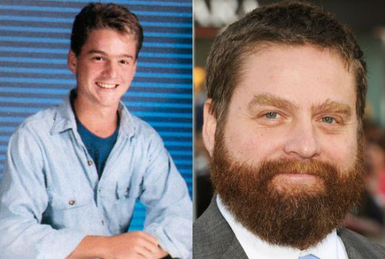 Zach Galifianakis Now and Then